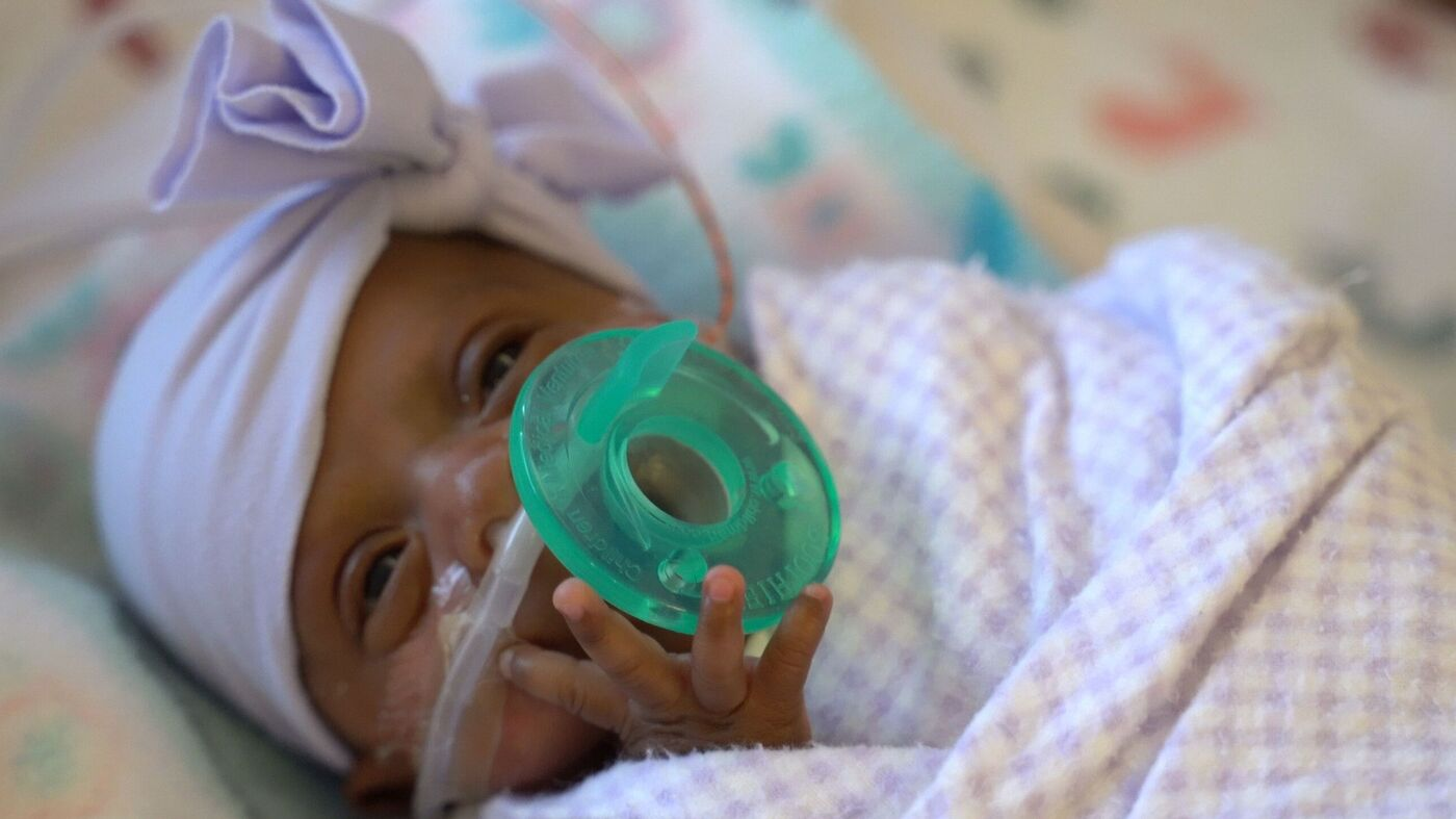 Smallest Surviving Preemie Released From San Diego