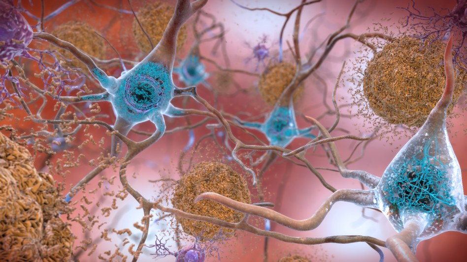 The squiggly blue lines visible in the neurons are an Alzheimer's biomarker called tau. The brownish clumps are amyloid plaques. (Courtesy of the National Institute on Aging/National Institutes of Health)