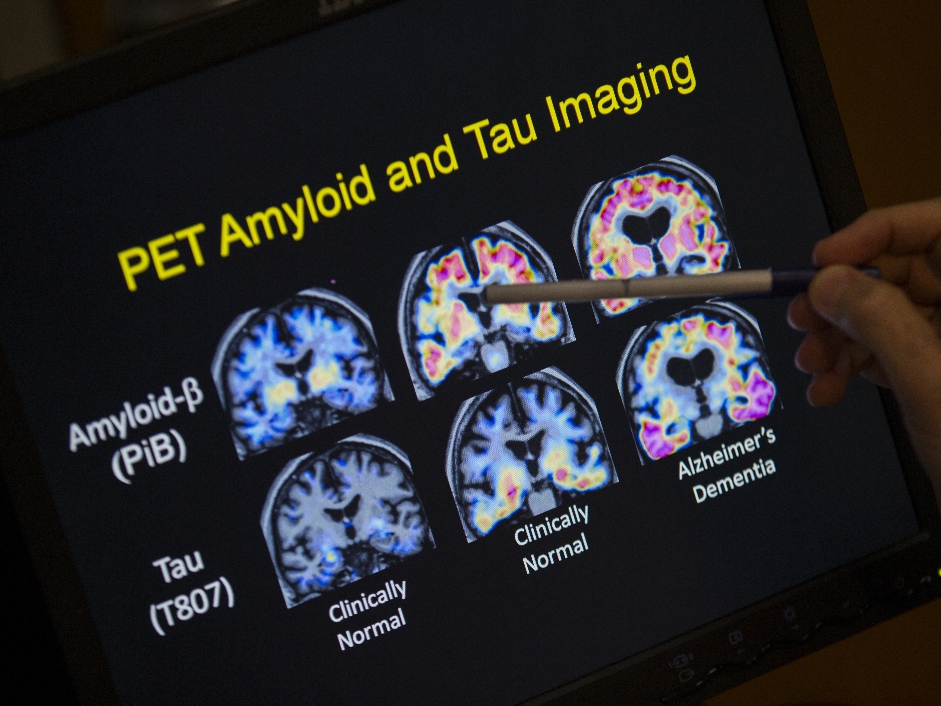 In a May 19, 2015 file photo, R. Scott Turner, Professor of Neurology and Director of the Memory Disorder Center at Georgetown University Hospital, points to PET scan results that are part of a study on Alzheimer's disease at Georgetown University Hospital, in Washington.