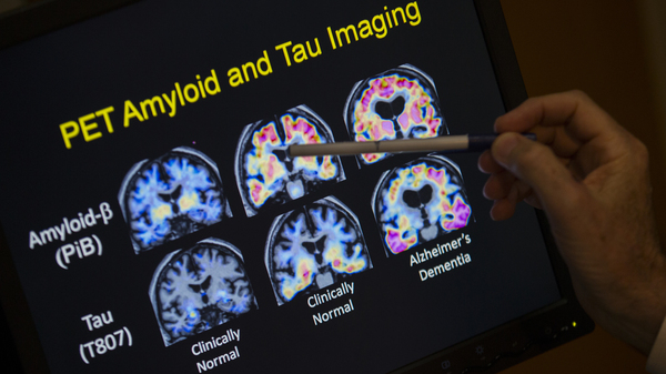 In a May 19, 2015 file photo, R. Scott Turner, Professor of Neurology and Director of the Memory Disorder Center at Georgetown University Hospital, points to PET scan results that are part of a study on Alzheimer