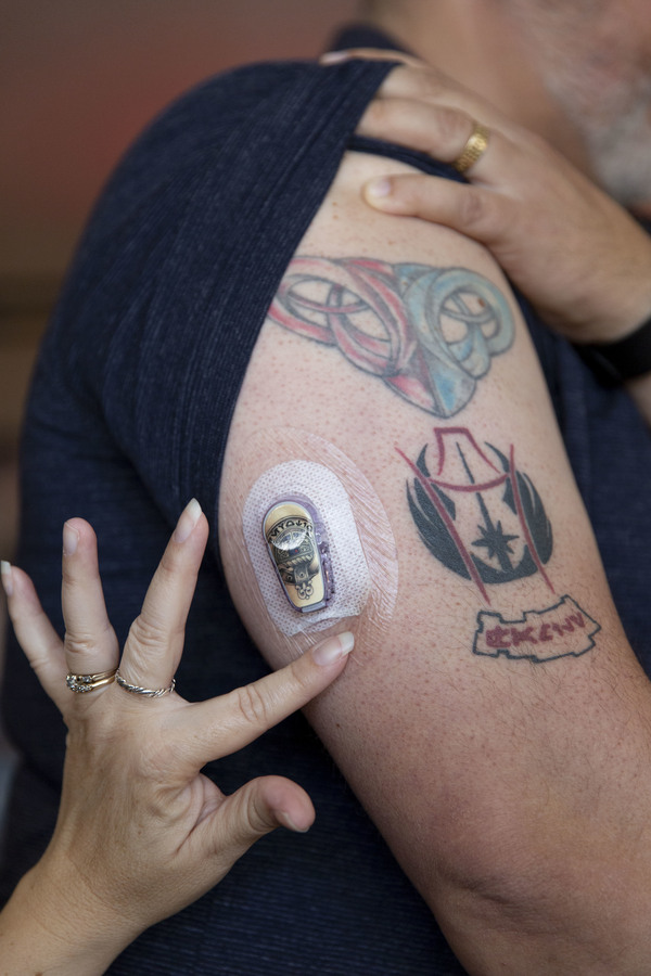 In their home in Whittier, Calif., Lisa Peralta pats Ric's Dexcom sensor to make sure it's staying on his arm. Before he got the device, Ric had to check his blood glucose via multiple finger pricks and plastic test strips every few hours.