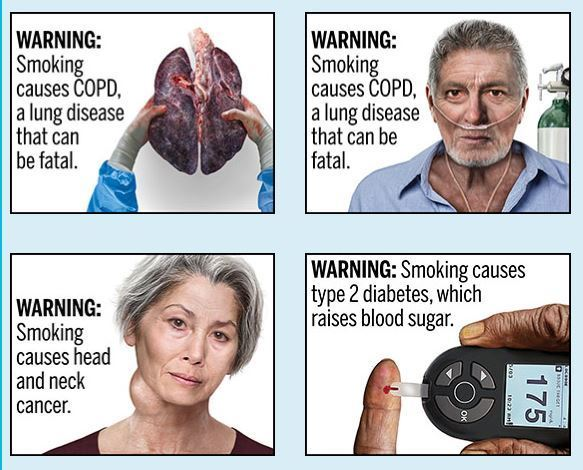 New Look For Cigarettes? FDA Proposes Graphic Warnings On