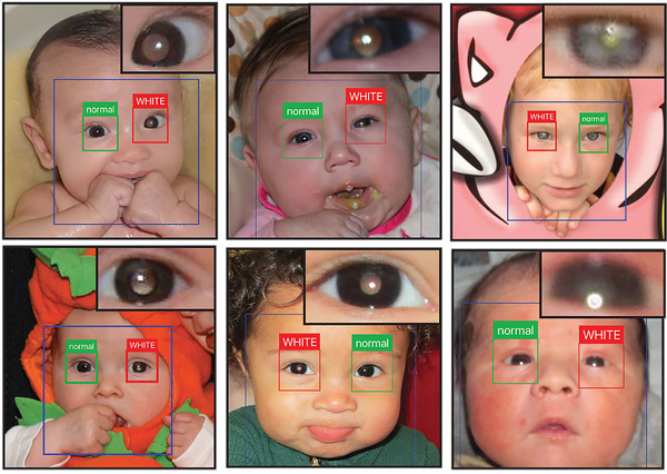 The app can scan picture on your phone and find the ones that might have signs of leukocoria. Inserts in upper right show magnified view of leukocoric pupil, which appears paler than a normal black pupil.