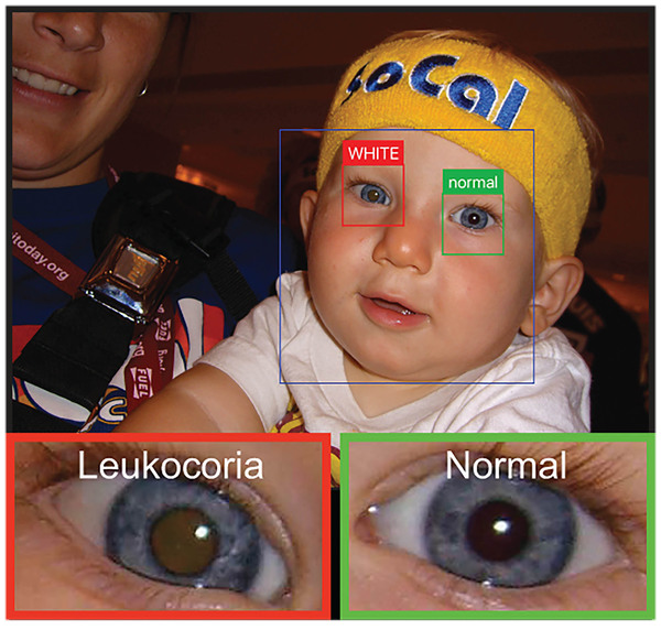 An app uses a smart phone camera to detect leukocoria, a pale reflection from the back of the eye. It can be an early sign of disease. Here it appears light brown compared the healthy eye.