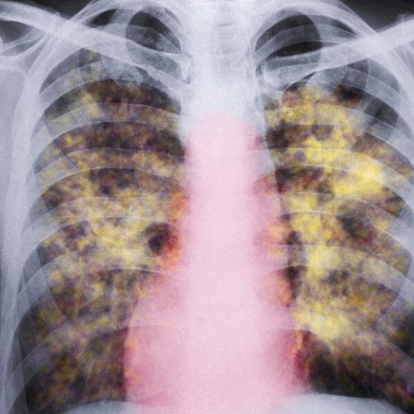 Lawmakers Seek Protections For Workers Against Lung Damage Tied To Making Countertops