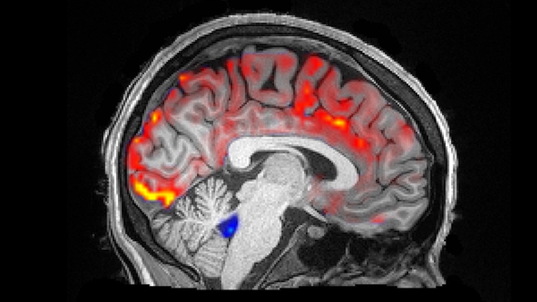 During deep sleep, waves of cerebrospinal fluid (blue) coincide with temporary decreases in blood flow (red). Less blood in the brain means more room for the fluid to carry away toxins, including those associated with Alzheimer
