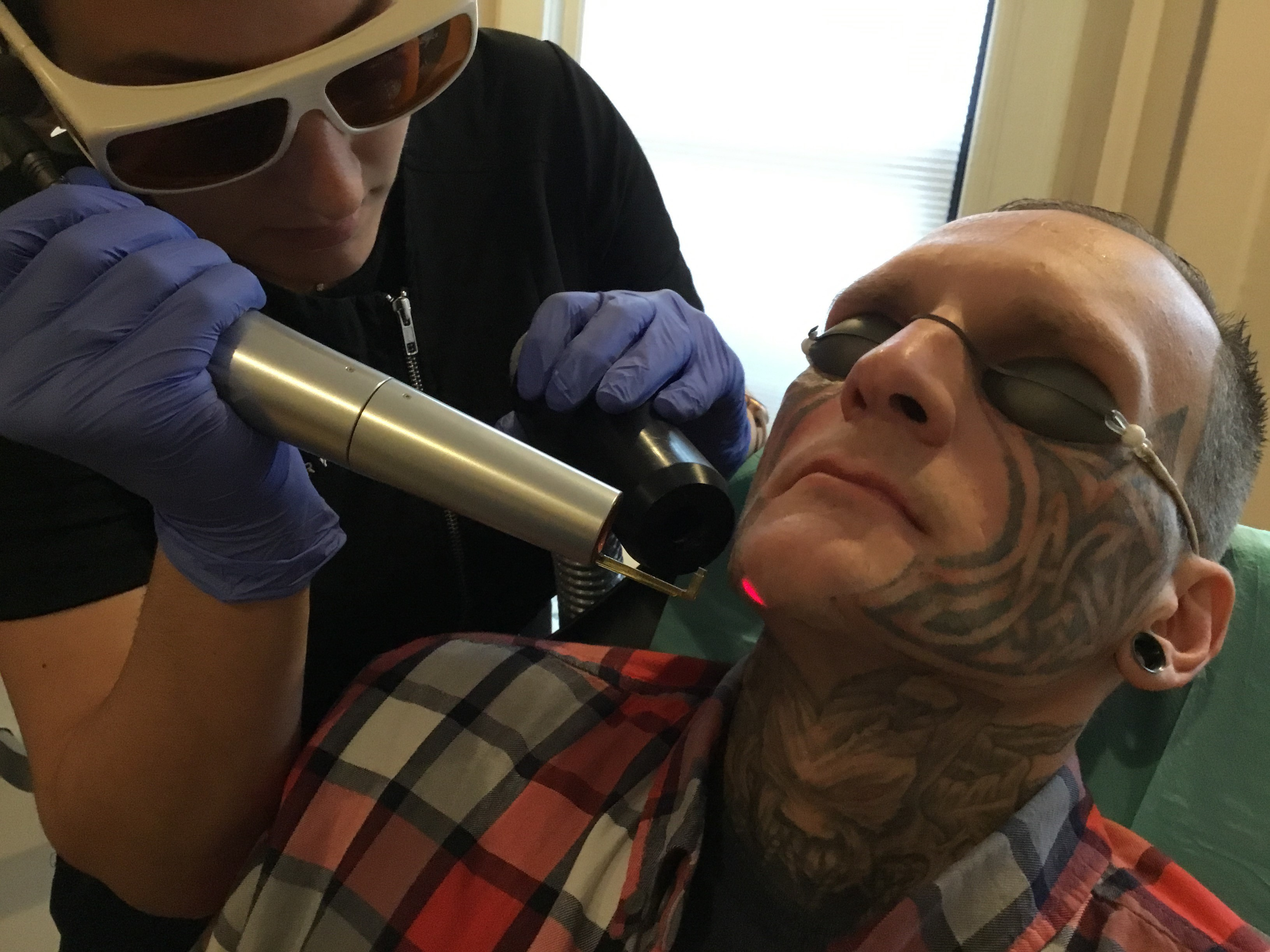 Tattoo Removal Programs Help Former Inmates Wipe The Slate Clean