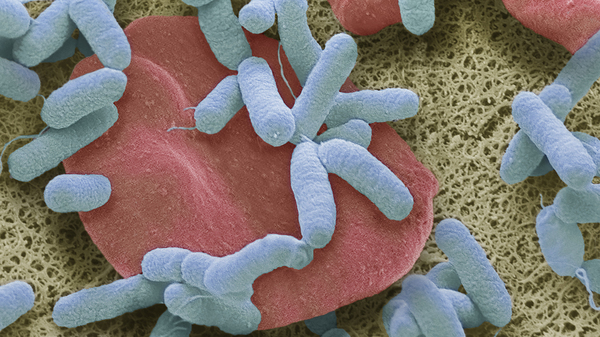 Sepsis, or blood poisoning, occurs when the body overreacts to infection. It