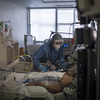 Por que alguns pacientes com COVID-19 sofrem um acidente: O sistema imunológico do corpo pode ser o culpado