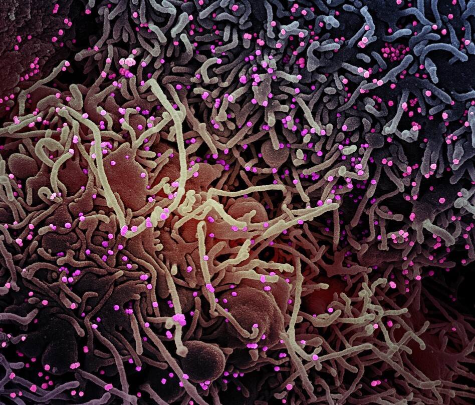 This image made by a scanning electron micrograph shows SARS-COV-2 virus particles (colorized pink) from a patient sample. There are various studies looking at changes to the virus genome — and the possible impact on how the virus affects humans. (NIAID/NIH)