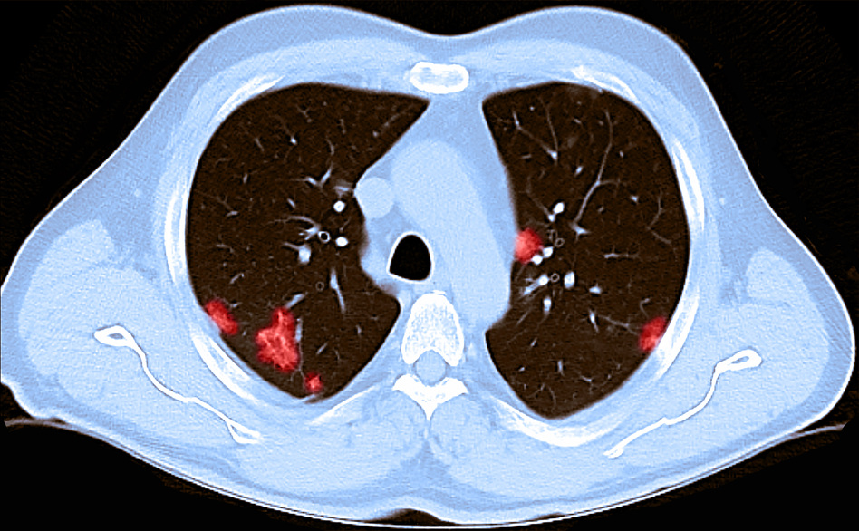A CT scan of the chest of a 66-year-old male reveals patchy rounded hazy spots throughout the lungs. He had tested positive for the coronavirus and experienced shortness of breath. (Steven Needell/Science Source)