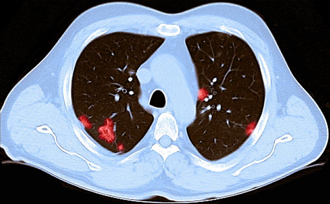 Casos assintomáticos de COVID-19 podem ter danos temporários nos pulmões: cabras e refrigerantes: NPR 2