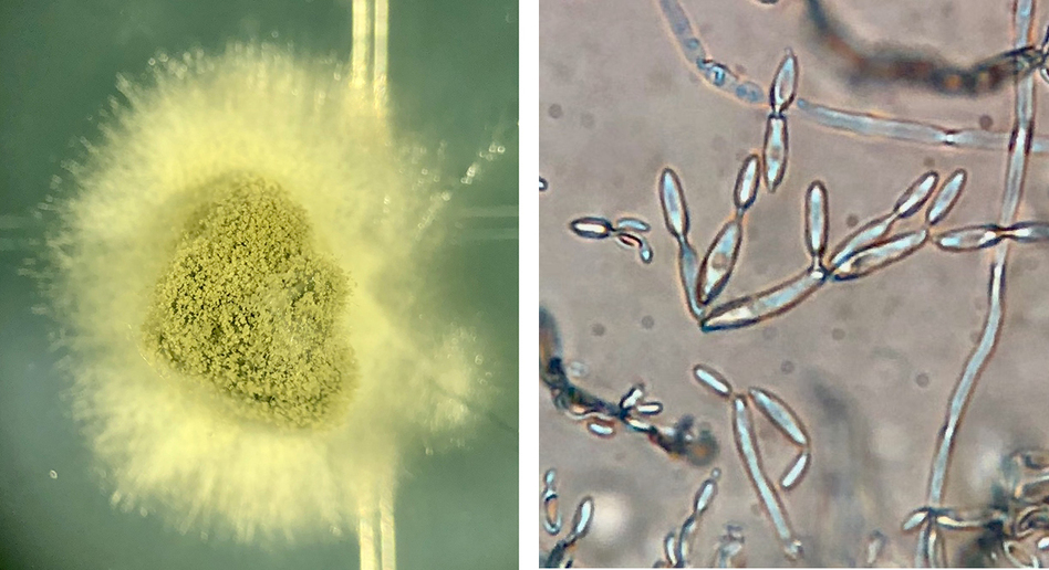 Cladosporium colonies emerge from a Twinkie sample (left) and viewed at 20 times magnification using a compound microscope.