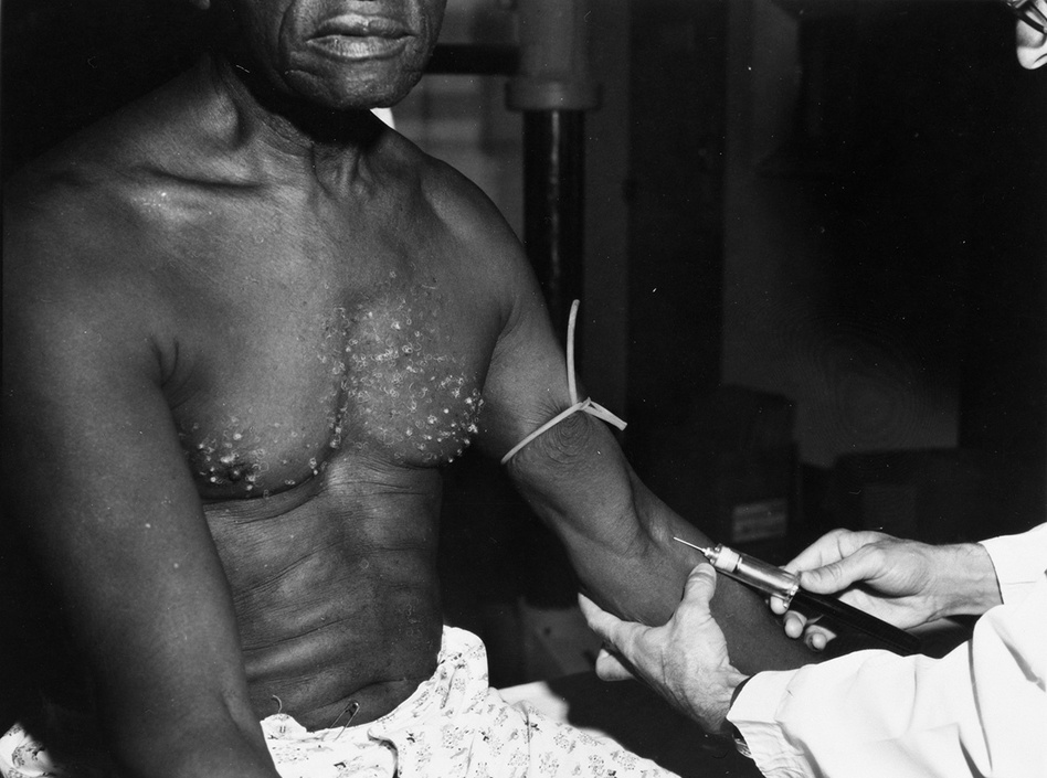 A participant in the Tuskegee Study in the 1930s. A lingering mistrust of the medical system among many Black people is rooted in the infamous study. (National Archives)