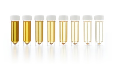 Micro Wave: Let's Talk About Urine