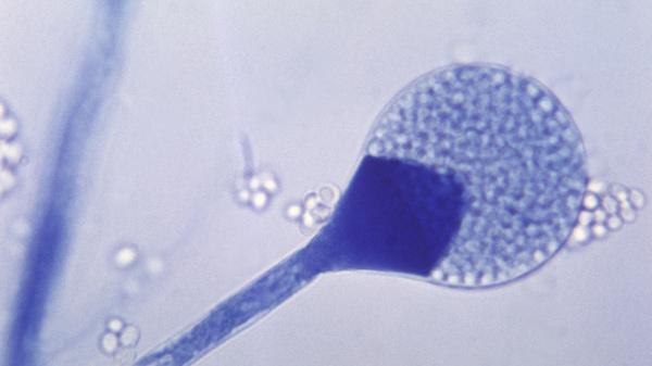 Light micrograph of a mature sporangium of a mucor fungus.