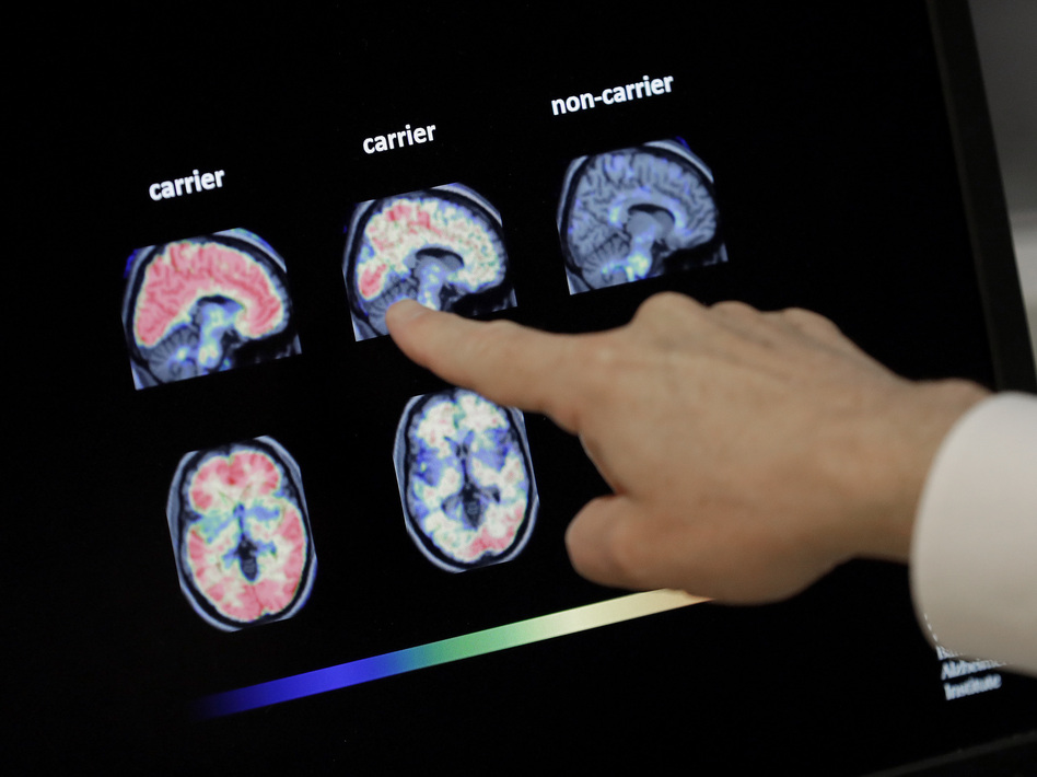 Dr. William Burke goes over a PET brain scan in 2018 at Banner Alzheimer's Institute in Phoenix. The drug company Biogen has received federal approval for a medicine to treat early Alzheimer's disease. (Matt York/AP)