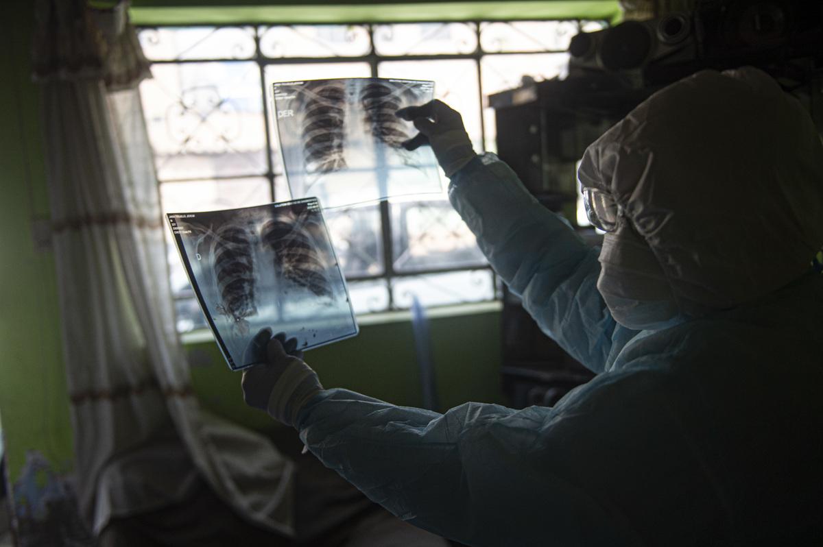 What you need to know: Coronavirus Updates: NPR