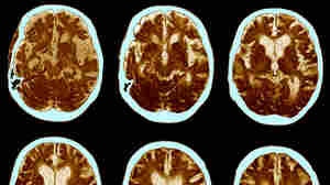 Future Alzheimer's Treatments Aim To Do More Than Clear Plaques From The Brain