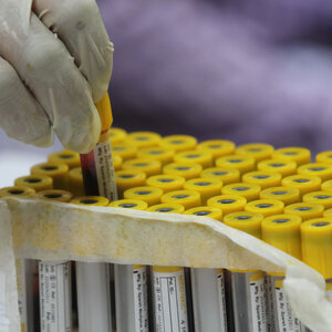 Antibody Tests Should Not Be Your Go-To For Checking COVID Immunity