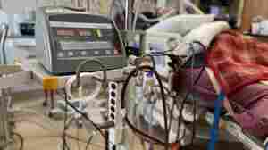 Across The COVID-Ravaged South, High-Level Life Support Is Difficult To Find
