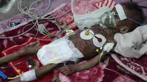 The U.N. Warns That Without New Funding, 16 Million People In Yemen Face Starvation