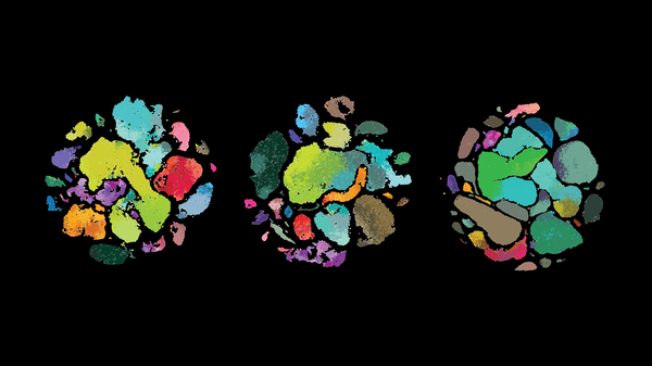 Scientists at the Allen Institute for Brain Science uncovered differences among human brain cells (left) those of the marmoset monkey (middle) and mouse in a brain region that controls movement, the primary motor cortex.