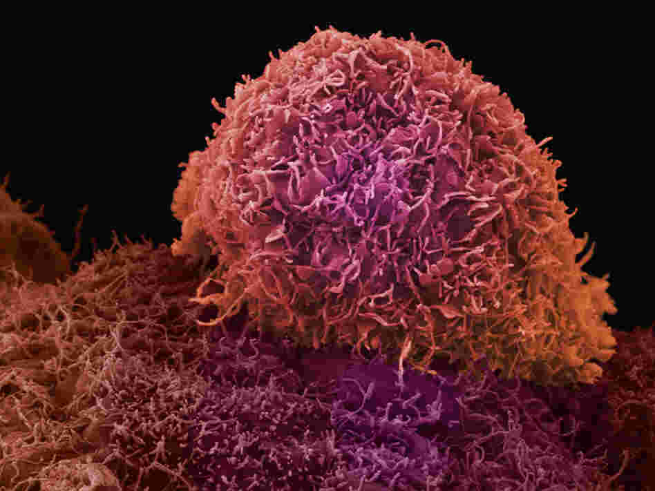 A microscope view of prostate cancer.