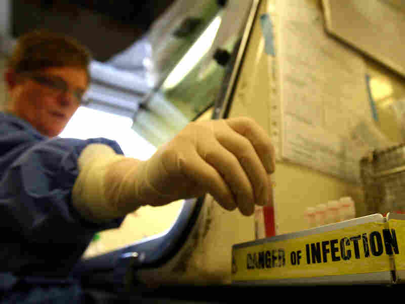 A scientist handles viral samples that have been tested for traces of swine flu.