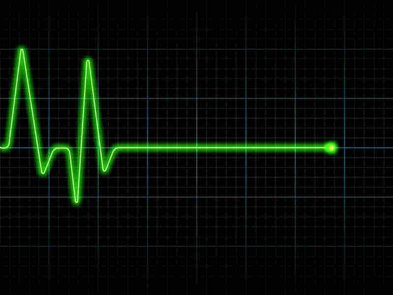 A heart monitor showing a flat line.