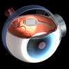A graphic shows a retinal prosthesis implanted in a human eye.