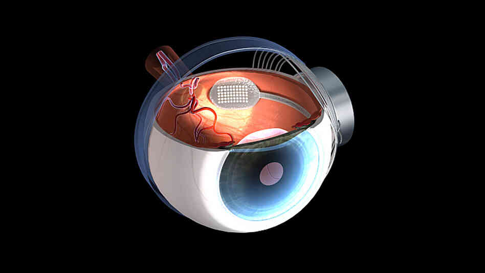 wide: A graphic shows a retinal prosthesis implanted in a human eye.
