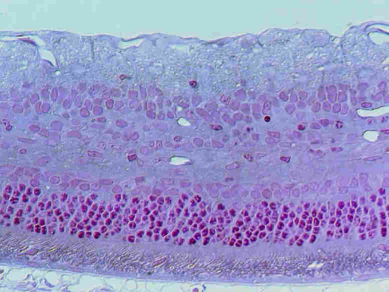A slide of repaired retina cells.