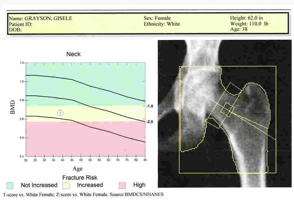 A sample bone scan report