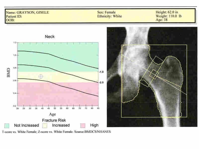 A sample bone scan report