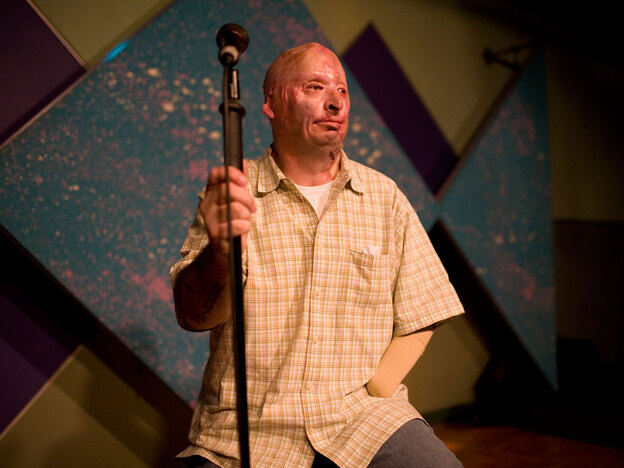 Staff Sgt. Bobby Henline was injured in Iraq by a roadside bomb three years ago, and was burned over nearly half of his body. After years of grueling physical therapy, he now performs at open mic night at the Rivercity Comedy Club in San Antonio.