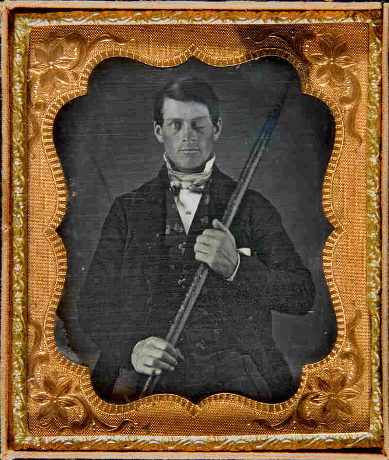 An image believed to be that of Phineas Gage