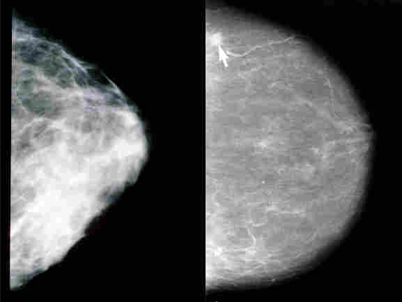 Two mammography scans, one of a healthy breast and another showing a tumor