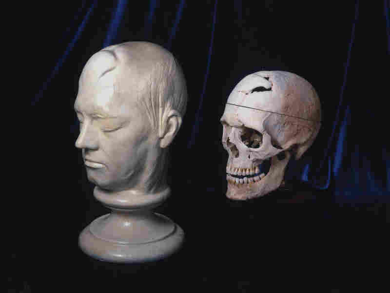 Gage's skull and life mask. Warren Anatomical Museum, Francis A. Countway Library of Medicine