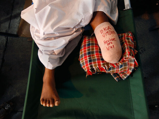A message covers a bandage on an amputated leg