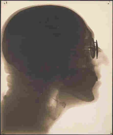 Self-portrait, radiograph, circa 1930s. In this contact print created from X-ray film, you