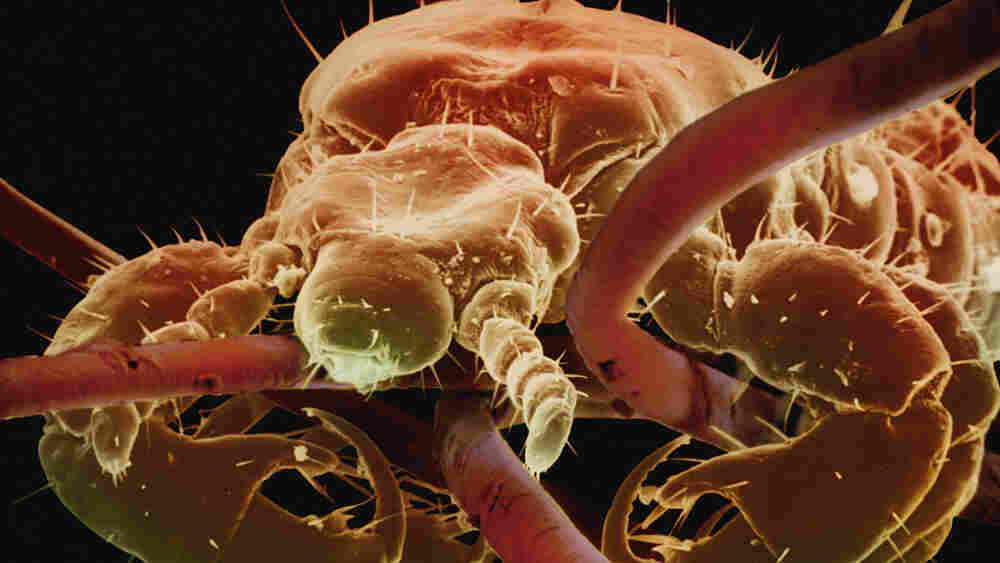 A close-up image of a louse, clinging to human hair.