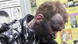 A commuter injured by the blast at the Park Kultury subway station shortly after the explosion.