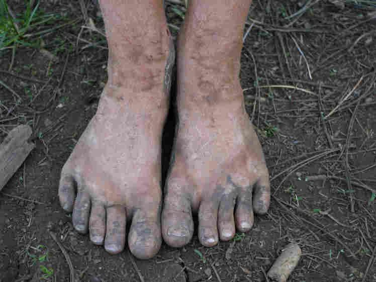 Dirty feet. iStockphoto.com