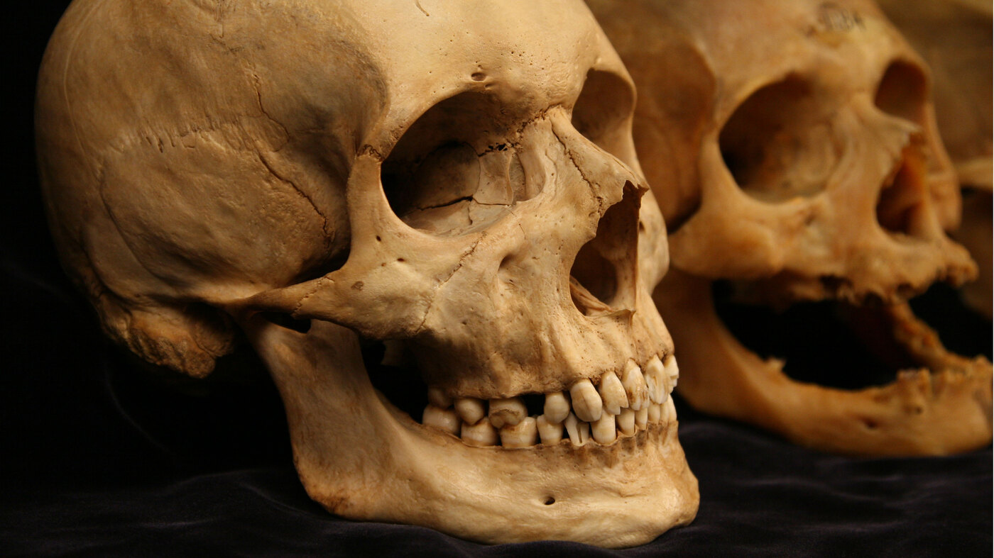 As Our Skin Sags With Age, So Do Our Bones : NPR