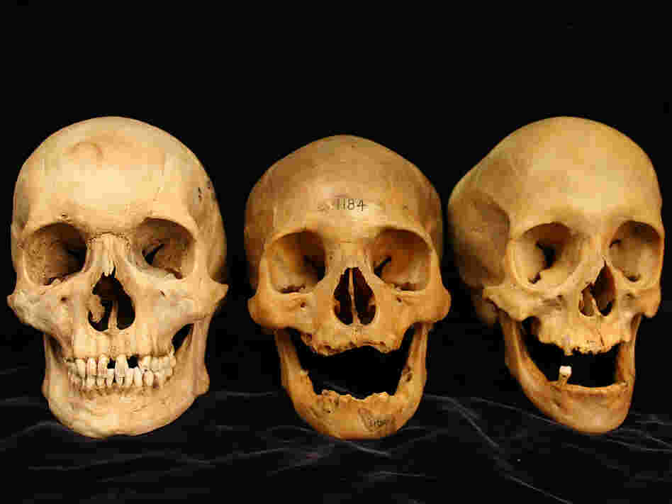 Three skulls showing a range of cheekbone deformation