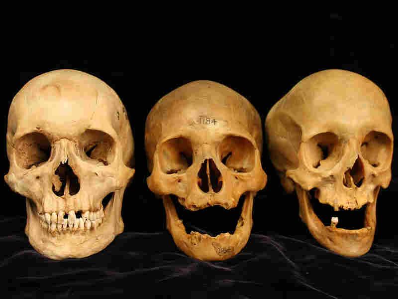 Three skulls showing a range of cheekbone deformation
