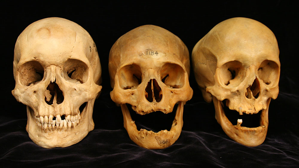 skullsockets_wide fdc5751bde0a2435970ca141e53b0da1a0c8da19?s=1400 as our skin sags with age, so do our bones npr