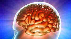 Illustration of human brain with figure