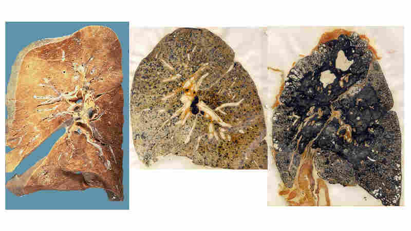 A normal lung, a lung with mild pneumoconiosis and one with complicated pneumoconiosis